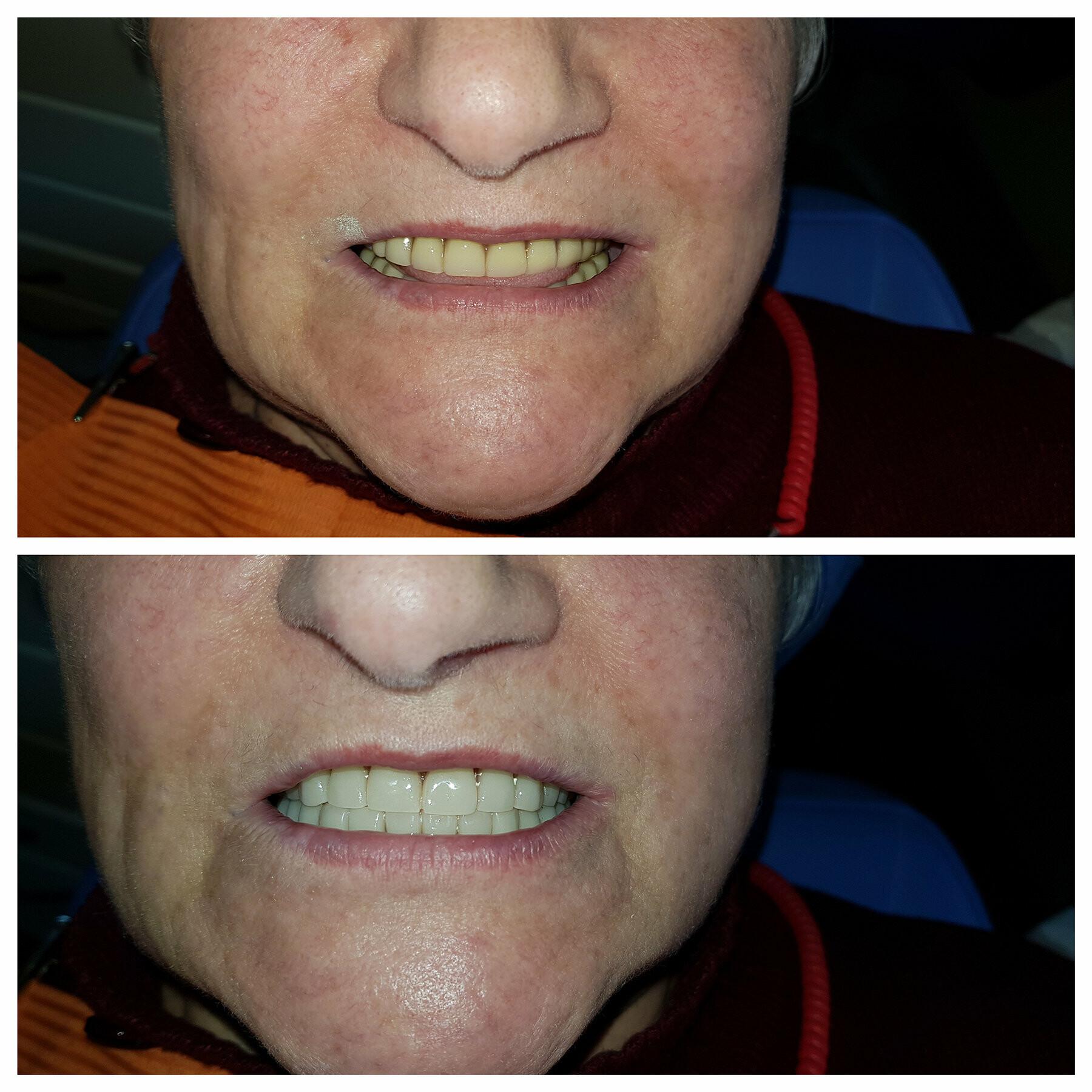 До и После, фото-3
